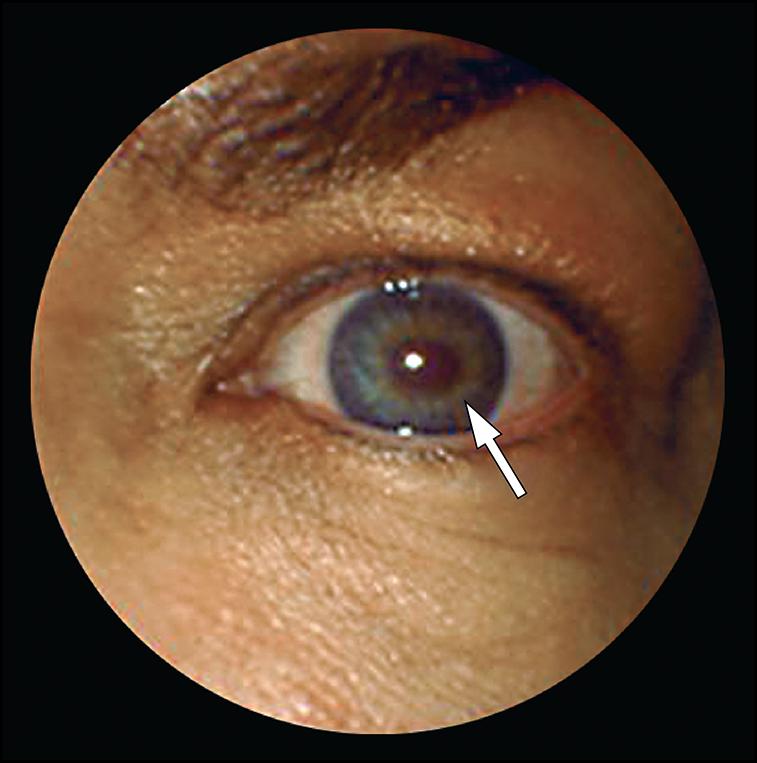 Lesi�n ocular despu�s del tratamiento de reducci�n del vello con l�ser en la ceja ...