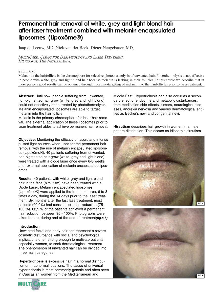 (PDF) Depilaci�n permanente del cabello blanco, gris y rubio claro ...