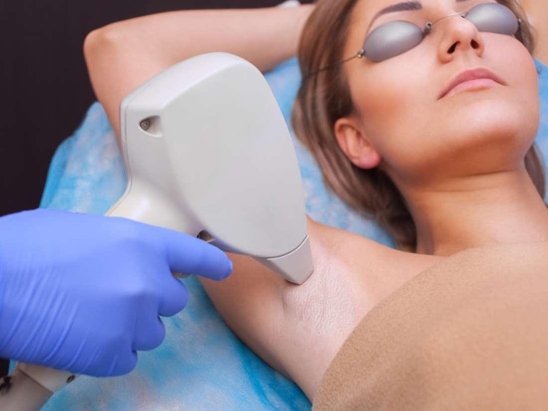 �La depilaci�n l�ser es permanente y segura?
