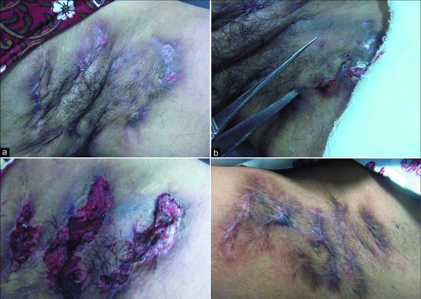 (a) Hidradenitis supurativa con m�ltiples senos, tractos y quistes ...