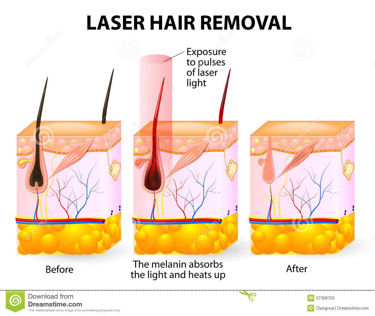 Revisi�n: Cl�nica de pulso l�ser, depilaci�n en tonos de piel oscuros